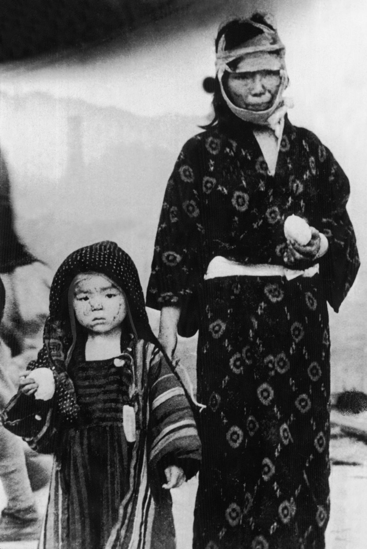 15atomic-bombing-hiroshima-nagasaki-69-years