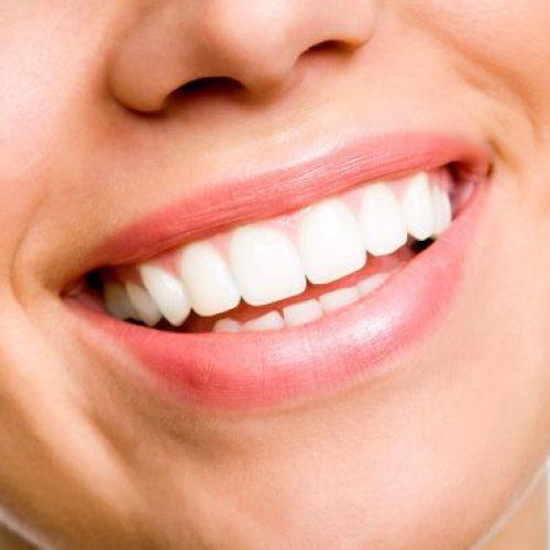 ΟΣΘ: Οι λόγοι που η λεύκανση δοντιών πρέπει να γίνεται μόνο σε ιατρείο και όχι σε παράνομα ινστιτούτα!