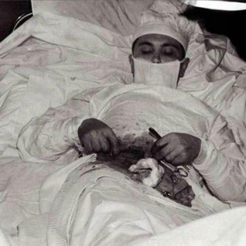 """Μια εικόνα χίλιες λέξεις: """"Ο γιατρός που χειρούργησε τον εαυτό του!"""""""