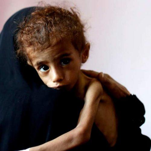 """Σιωπή για τον """"χειρότερο λιμό του κόσμου τα τελευταία 100 χρόνια"""""""