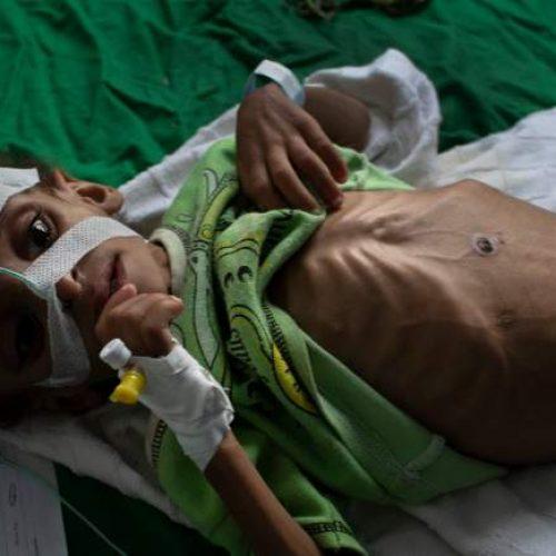 Το μεγαλύτερο έγκλημα της Σαουδικής Αραβίας δεν είναι ο Κασόγκι