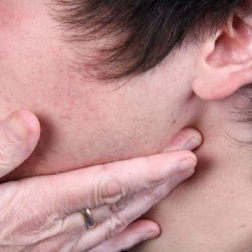 """Λέμφωμα. Ο ύπουλος καρκίνος - Προσοχή στα """"αθώα"""" συμπτώματα"""