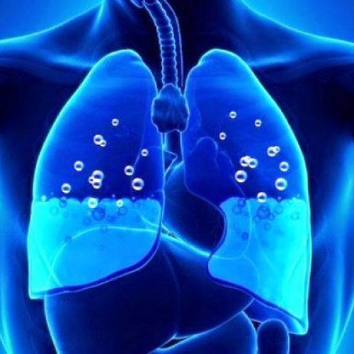 """Πνευμονικό οίδημα. Τα """"επικίνδυνα"""" σημάδια"""