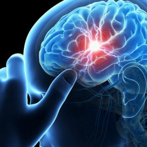 Πώς μπορεί να προληφθεί το εγκεφαλικό - Ποια είναι τα πρώιμα σημάδια