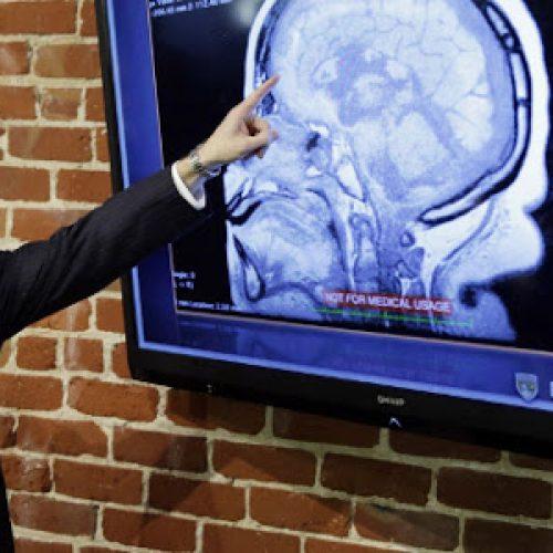 Επαναστατική ανακάλυψη: Επιστήμονες μετέφρασαν για πρώτη φορά την ανθρώπινη σκέψη σε ομιλία