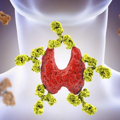 Θυρεοειδίτιδα Χασιμότο: Τι είναι - Ποια τα πρώτα συμπτώματα