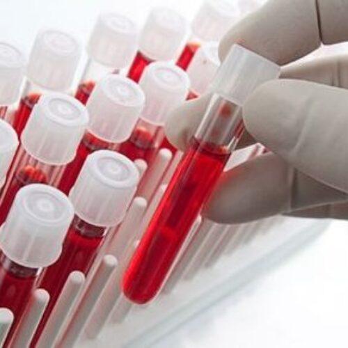 Νέα εξέταση θα ανιχνεύει τον καρκίνο του μαστού έως και 5 χρόνια πριν την εμφάνισή του