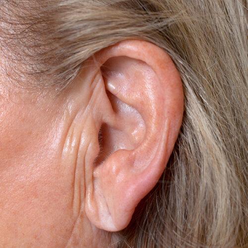 Το σημάδι του Φρανκ - Τα αυτιά προδίδουν τον κίνδυνο εγκεφαλικού