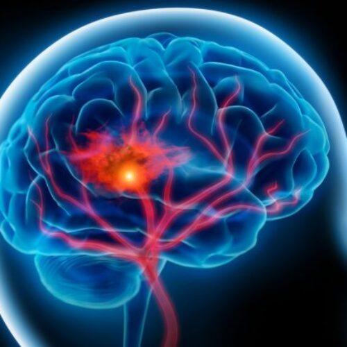 Εγκεφαλικό: Προσοχή στα πρώιμα συμπτώματα