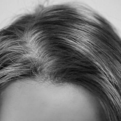 Ερευνητές βρήκαν τον λόγο που τα μαλλιά μπορεί να ασπρίσουν σε μια νύχτα