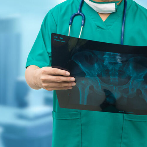 Εν μέρει αποκατάσταση της λειτουργίας του Ακτινολογικού Τμήματος στο Κέντρο Υγείας Βέροιας