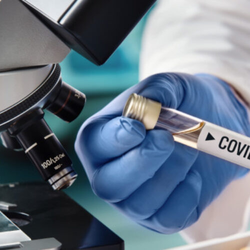Bloomberg: Κρίσιμες ανακοινώσεις τη Δευτέρα για το εμβόλιο της Οξφόρδης