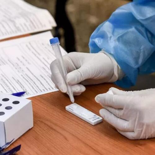 Δήμο Βέροιας: Δωρεάν rapid test από την Δευτέρα 28 Ιουνίου έως την Κυριακή 4 Ιουλίου
