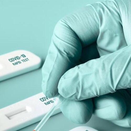 Δήμος Βέροιας: Δωρεάν πρόγραμμα rapid test, από Δευτέρα 6 έως και Κυριακή 12 Σεπτεμβρίου